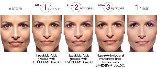 juvedermvolumaXC-judithcrowell,md,cosmeticdermatologist-miami